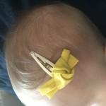 Barrette nœud jaune Tape à l'Oeil